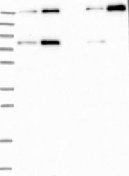 NBP1-91902 - Filensin