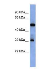 NBP1-69363 - Folate receptor alpha