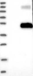 NBP1-89819 - Follistatin