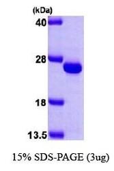 NBP1-30312 - Frataxin (FXN)