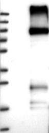 NBP1-89702 - FZD6