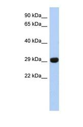 NBP1-56367 - Ketosamine-3-kinase