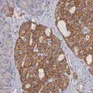 NBP1-88111 - G protein z alpha