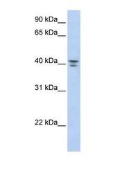 NBP1-55321 - G protein subunit alpha 12 / GNA12
