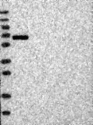 NBP1-89753 - Protein ALEX