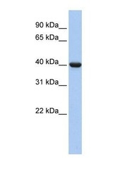 NBP1-58301 - G protein alpha Inhibitor 2