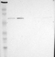 NBP1-83404 - G3BP1 / G3BP