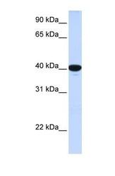NBP1-59361 - Glucose-6-phosphatase / G6PC