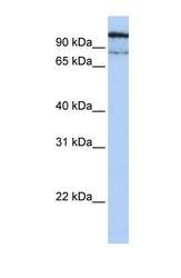 NBP1-69295 - Alpha-glucosidase