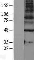 NBL1-10925 - GABA A Receptor gamma 1 Lysate