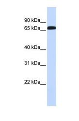 NBP1-59878 - GAT1 / SLC6A1