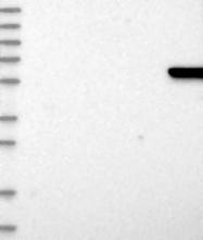 NBP1-91920 - GAT3 / SLC6A11