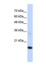 NBP1-55202 - GABARAPL1