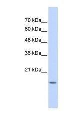 NBP1-55203 - GABARAPL1