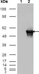 NBP1-47416 - GABPA