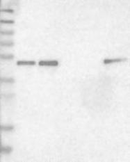 NBP1-84028 - GABPB1
