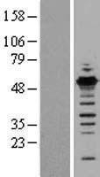 NBL1-10912 - GABPB1 Lysate