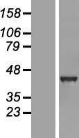 NBL1-10913 - GABPB1 Lysate