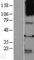 NBL1-10931 - GABRQ Lysate