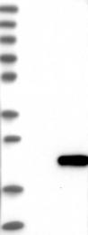NBP1-84385 - GADD45G