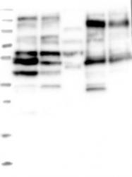 NBP1-85863 - GADL1