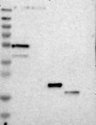 NBP1-83397 - GAL3ST3