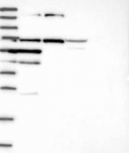 NBP1-82309 - GAL3ST4