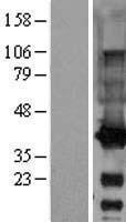 NBL1-10946 - GALE Lysate