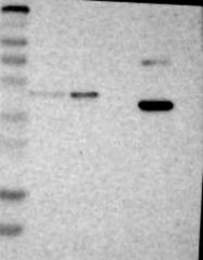 NBP1-81853 - Galactokinase 1