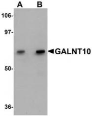 NBP1-77058 - GALNT10