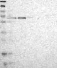 NBP1-83394 - GALNT2