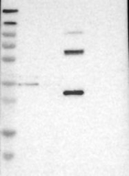 NBP1-81844 - GALNTL2