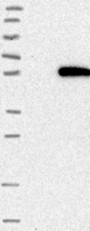 NBP1-81847 - GALNTL5 / GALNT15