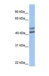 NBP1-54980 - GALT