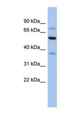 NBP1-54602 - Glycyl-tRNA synthetase