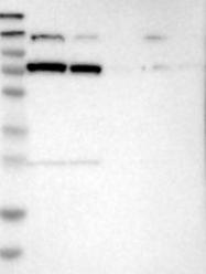 NBP1-85533 - Glycyl-tRNA synthetase