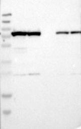 NBP1-85534 - Glycyl-tRNA synthetase