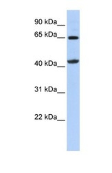 NBP1-54764 - Glycine amidinotransferase
