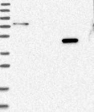 NBP1-89211 - Glycine amidinotransferase