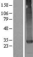 NBL1-12624 - GATSL3 Lysate