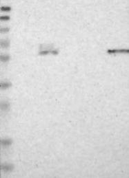 NBP1-83389 - Glucosylceramidase