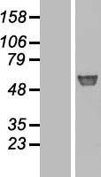 NBL1-10990 - GBA Lysate