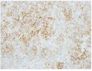 NBP1-32271 - Glucosylceramidase