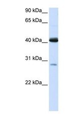 NBP1-54641 - GCD / GCDH