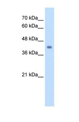 NBP1-54737 - GCD / GCDH