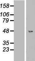 NBL1-11003 - GCDH Lysate