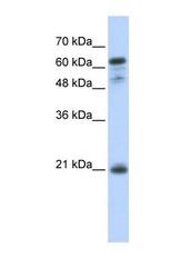 NBP1-54596 - GCET2 / GAL