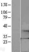NBL1-11007 - GCH1 Lysate