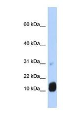 NBP1-54960 - GCHFR / GFRP