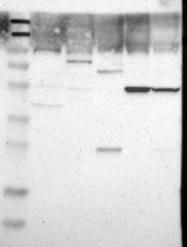 NBP1-81741 - Glucokinase / Hexokinase-4